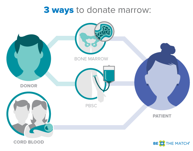 2b-be_the_match-3_ways_to_donate_marrow